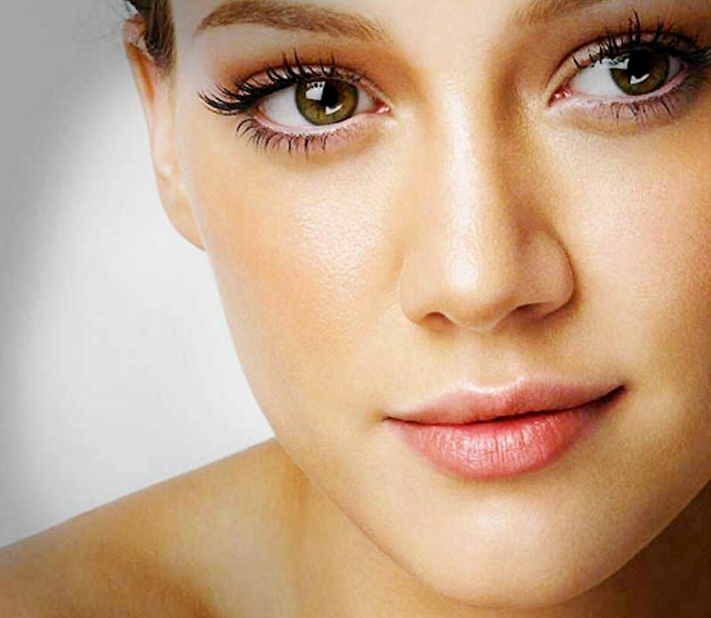 Acne Rosacea Treatment Metrogel